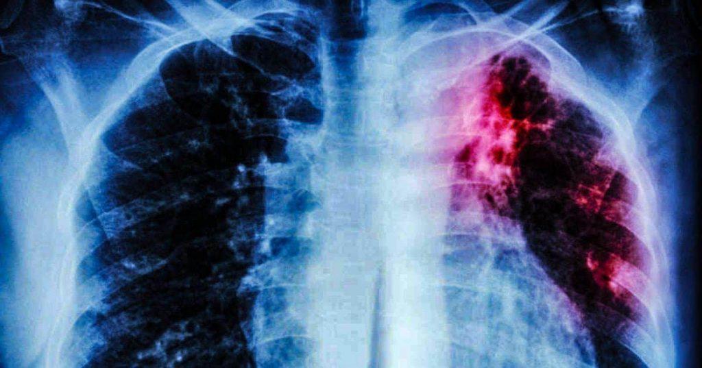 Joan Zikutara   Tuberkulosiaren gorakada pandemian